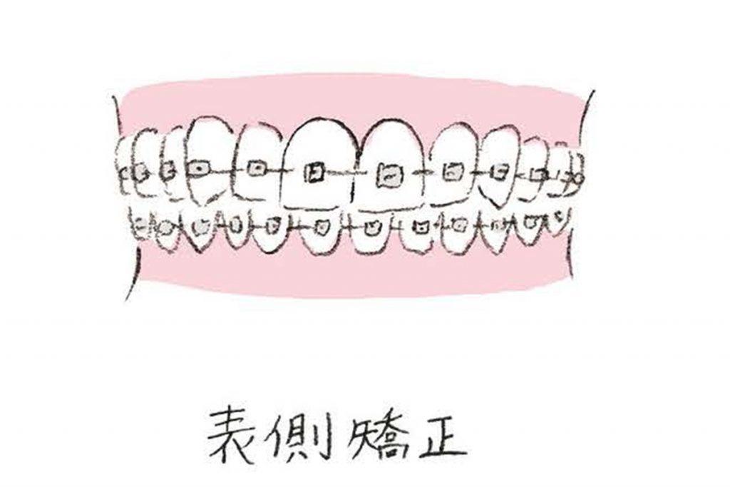 3HANAKO1162_0601