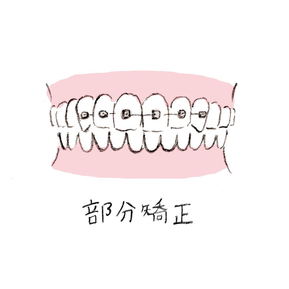 dental_orthodontics01_u1