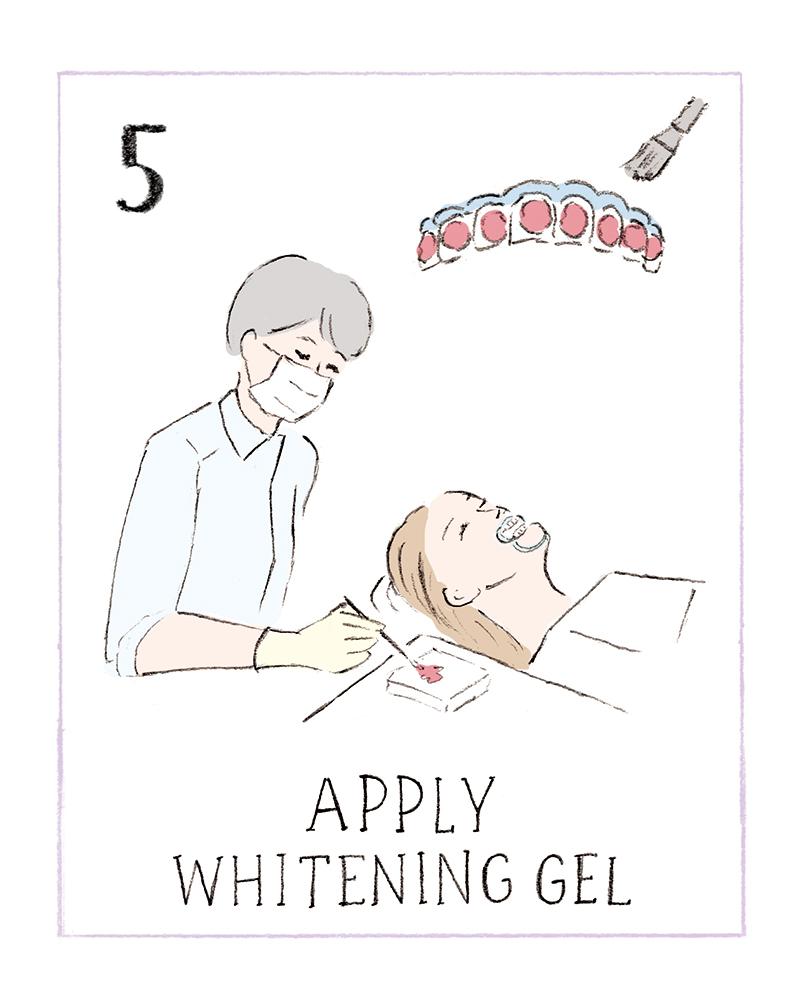 dental_whitening05_u