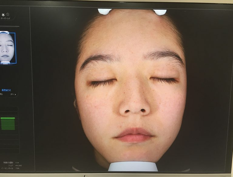 最新の画像診断でシミ、毛穴、色むら、メラニン量などを測定。「将来出てくる可能性のあるシミまでわかって驚きです」と永田さん。